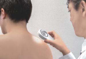 皮膚腫瘍(できもの:ほくろ・イボ・粉瘤)の治療:治療の流れ2