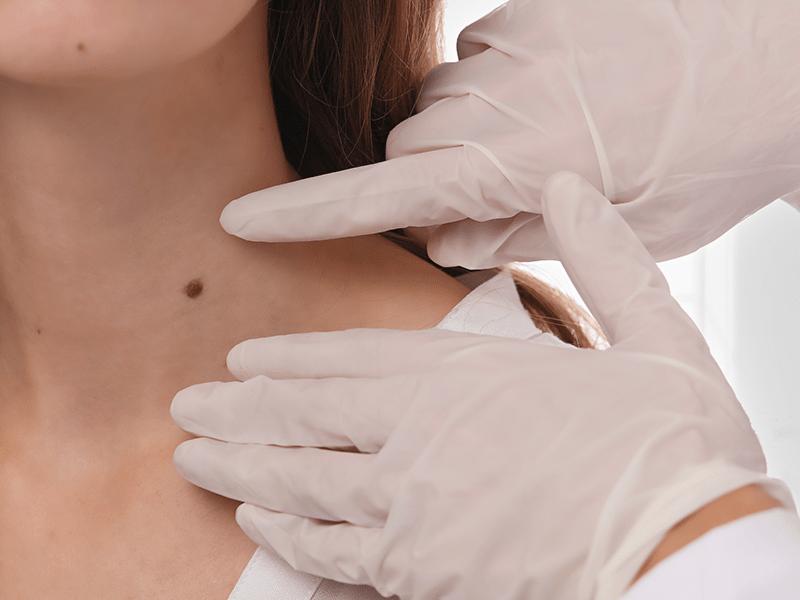 皮膚腫瘍(できもの:ほくろ・イボ・粉瘤)の治療