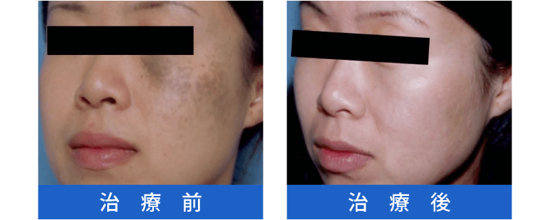 Qスイッチレーザー治療の症例1