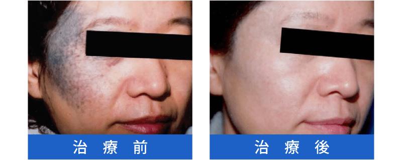 Qスイッチレーザー治療の症例2